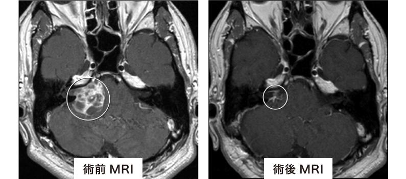 聴神経腫瘍の電気モニタリング手術について