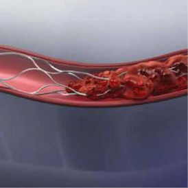 血管内治療
