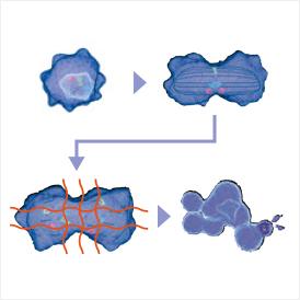 膠芽腫への交流電場腫瘍治療
